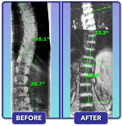Before and after scoliosis treatment for 38 degree curve