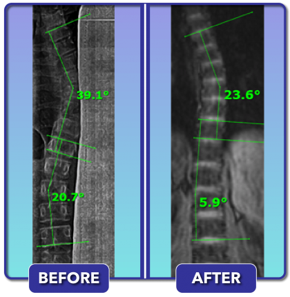 Before and after scoliosis treatment for 39 degree curve