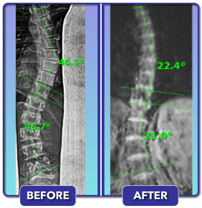 Before and after scoliosis treatment for 46 degree curve