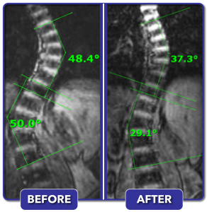 Before and after scoliosis treatment for 50 degree curve