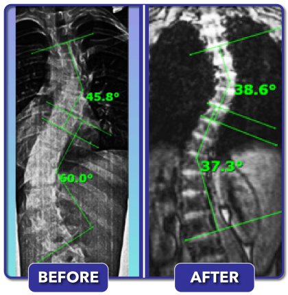 Before and after scoliosis treatment for 60 degree curve