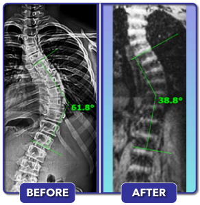 Before and after scoliosis treatment for 62 degree curve
