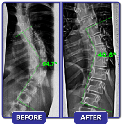 Before and after scoliosis treatment for 65 degree curve