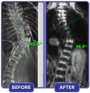 Before and after scoliosis treatment for 65.5 degree curve