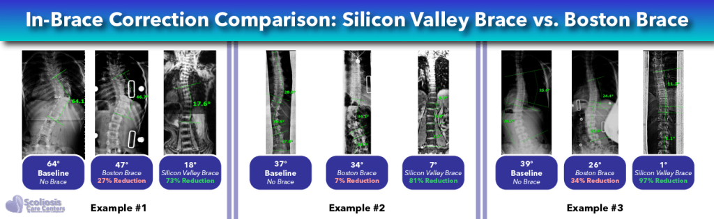 Scoliosis in-brace correction comparison - Boston Brace versus Silicon Valley Brace