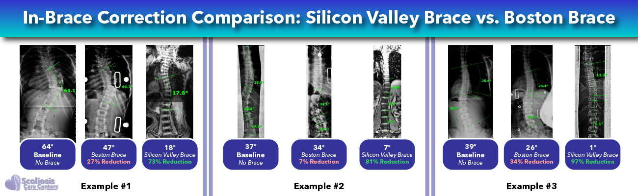 Scoliosis in-brace correction comparison - Boston Brace versus Silicon Valley Brace