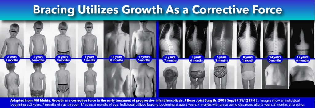 Bracing Utilizes Growth As Corrective Force