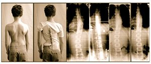 Scoliosis Bracing Study 2