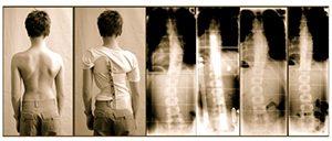 Scoliosis Bracing Study 2