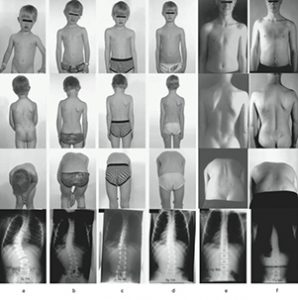 Scoliosis Bracing Study