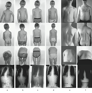 Scoliosis Bracing Study