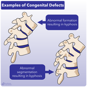 Examples of congenital defects that can cause kyphosis