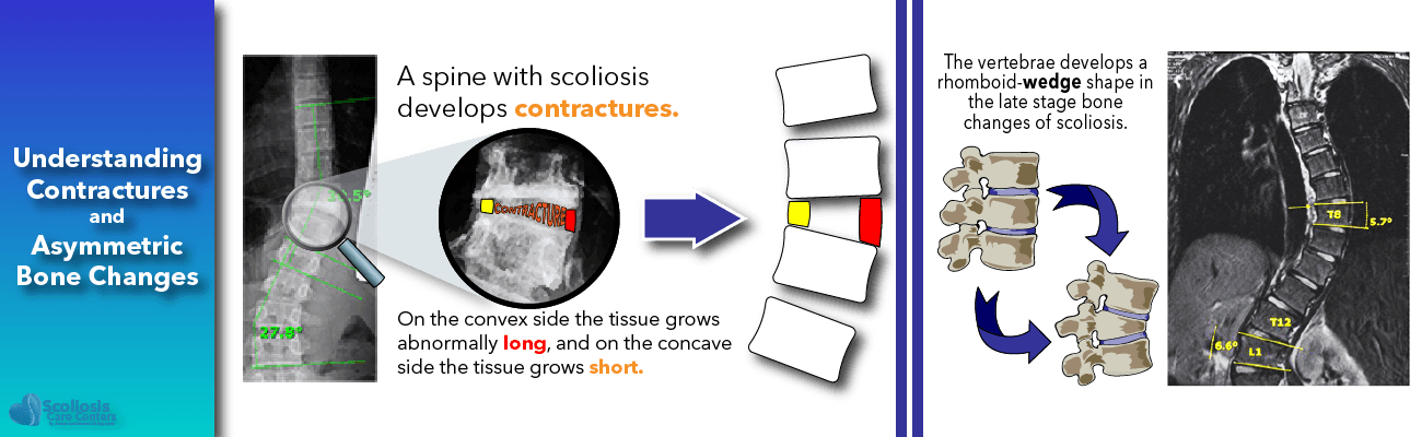 Scoliosis treatment: the relationship between scoliosis, contractures and asymmetric bone changes