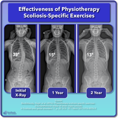 Effectiveness of physiotherapy scoliosis specific exercises