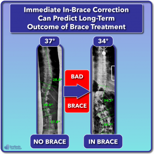 Poor in-brace correction associated with poor scoliosis treatment outcome