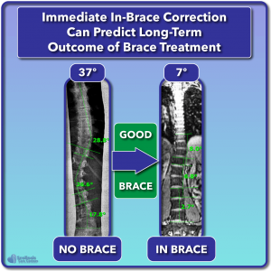 Good in-brace correction can predict good scoliosis treatment outcome