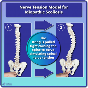 Example of nerve tension causing scoliosis to develop