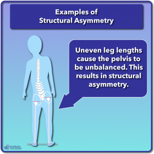 Example of structural asymmetry leg length discrepancy