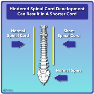 Example of hindered spinal cord development resulting in a short cord