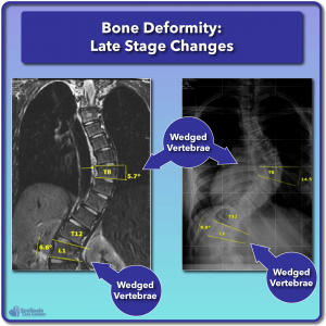 Examples of wedged vertebrae late stage bone changes in scoliosis