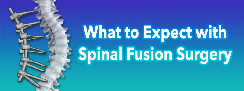 What to Expect with Spinal Fusion Scoliosis Surgery