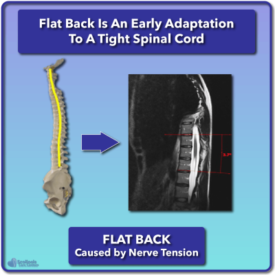 Anterior spinal overgrowth (flat back) caused by nerve tension
