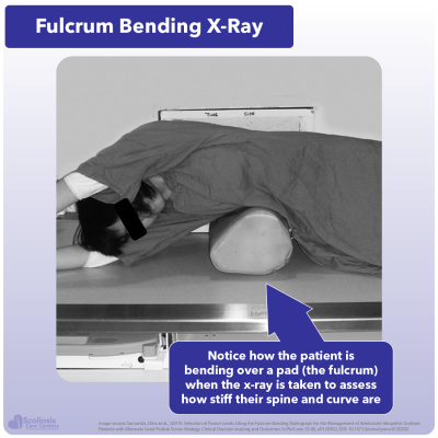 Example of fulcrum bending x-ray