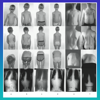 Using growth as a scoliosis corrective force for scoliosis treatment