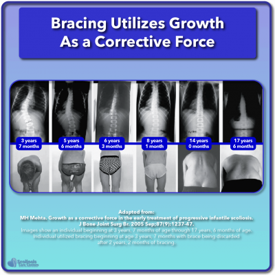 Scoliosis research bracing utilizes growth as a corrective force curve reduction example