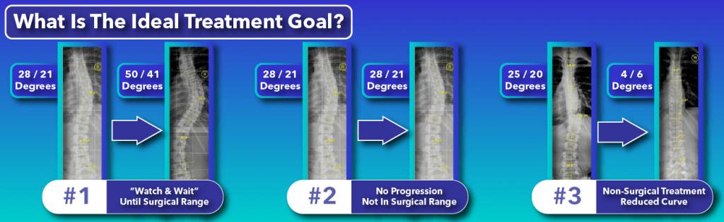Comparison of various scoliosis treatment goals