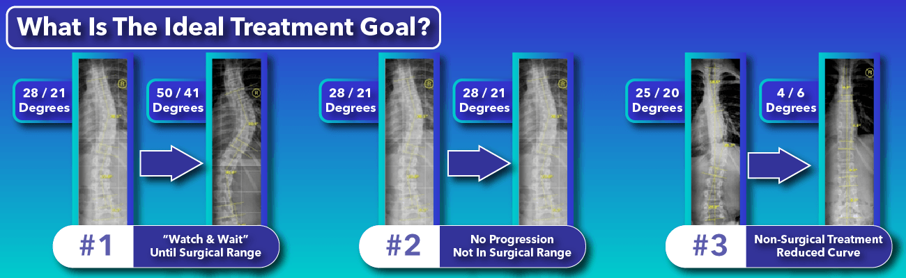 Comparison of various scoliosis treatment goals