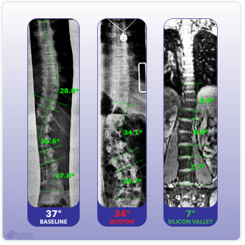X-ray showing significantly improved in-brace correction with the Silicon Valley Brace