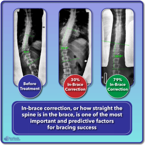 In-brace correction can predict bracing effectiveness and success