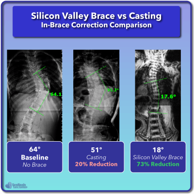Casting scoliosis correction compared to Silicon Valley Brace
