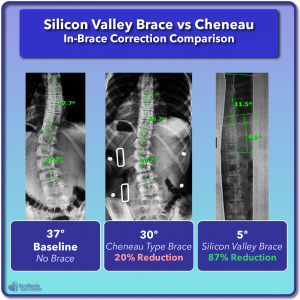 Cheneau in-brace scoliosis correction compared to Silicon Valley Brace