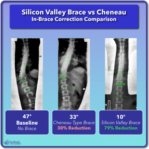Cheneau in-brace scoliosis correction compared to Silicon Valley Brace Example #2