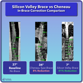 Cheneau in-brace scoliosis correction compared to Silicon Valley Brace Example #3