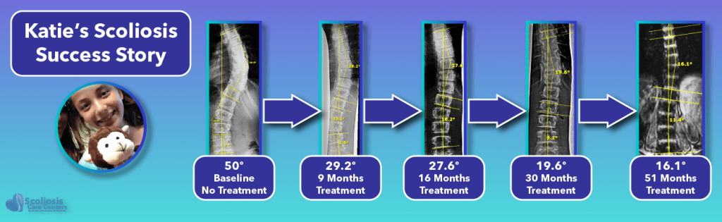 Katie's 50 degree scoliosis success story following non-surgical treatment