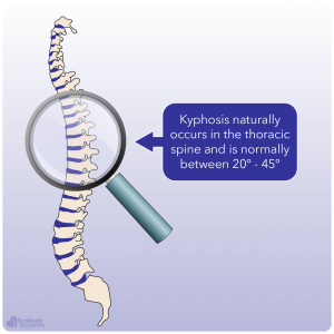 Example showing natural kyphosis in thoracic spine of 20-45 degrees