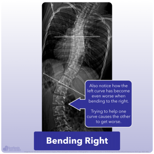 Example of lateral bending causing second scoliosis curve to worsen