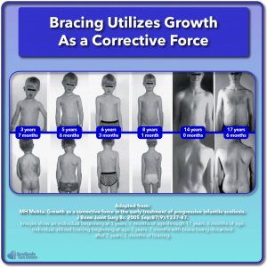 Scoliosis research growth as a corrective force posture photos