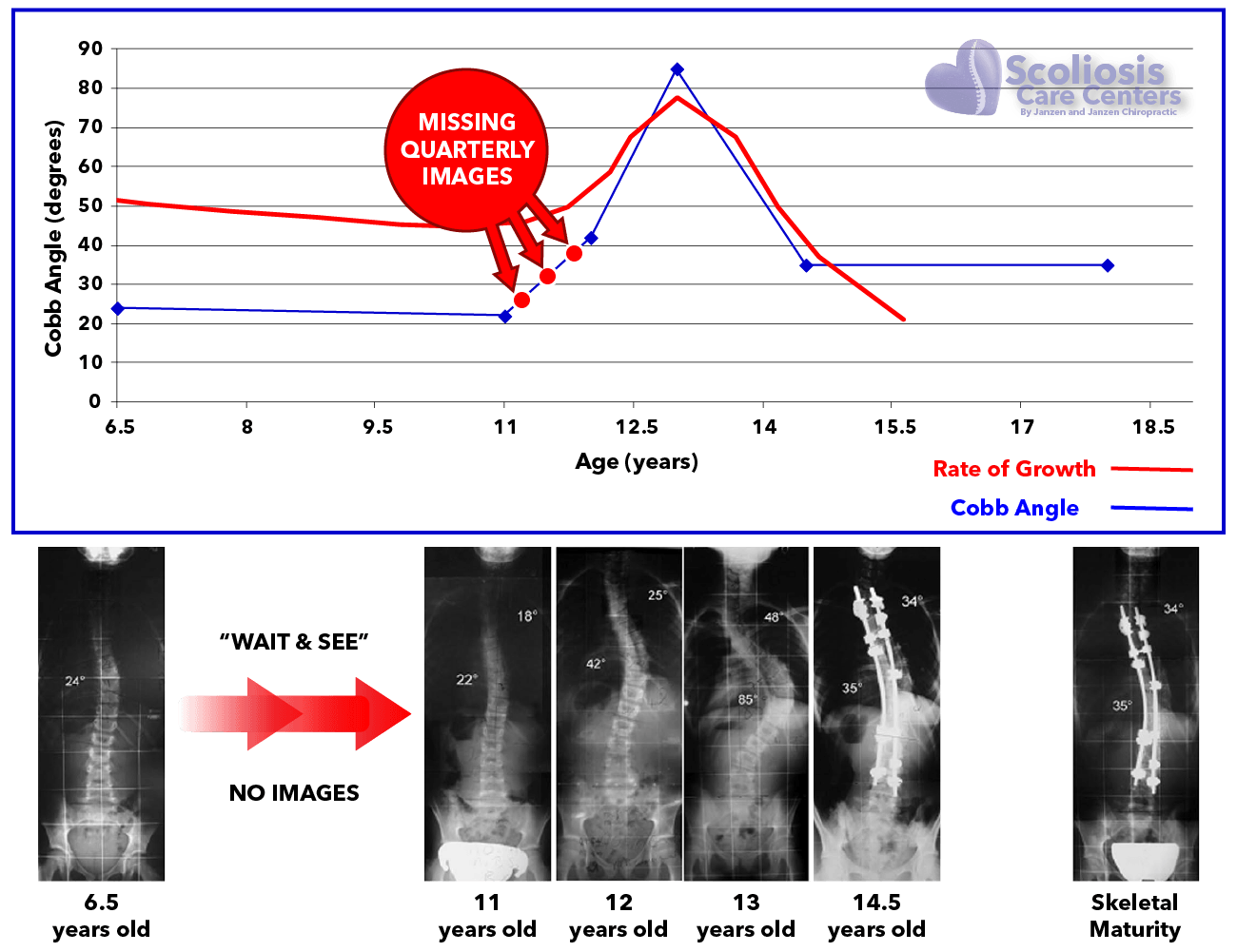 Missing quarterly images allows a scoliosis to worsen unchecked