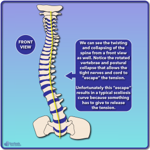 Front view diagram of a spine developing scoliosis as a result of nerve tension