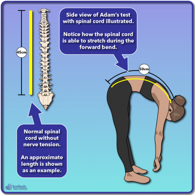 Illustrated example of a normal Adam's bending test