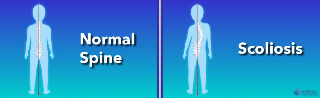 Normal spine versus a spine with scoliosis