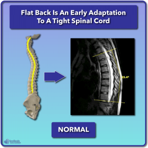 Normal spine without relative anterior spinal overgrowth