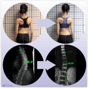 Girl showing posture improvement after treatment and spine showing curve reduction after treatment