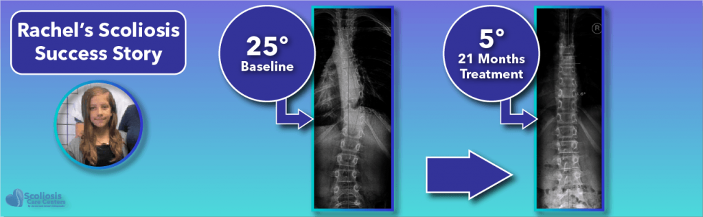 Rachel's 25 degree scoliosis success story following non-surgical treatment