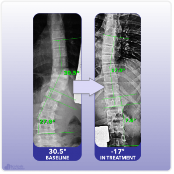 X-ray showing reduction and reversal of scoliosis curve in treatment