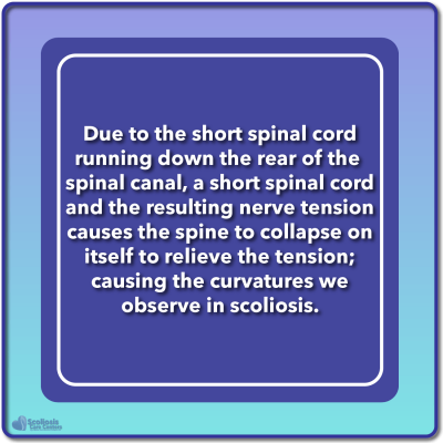 Explanation of Roth nerve tension hypothesis for scoliosis